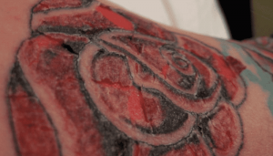 Tattoo scabbing affected